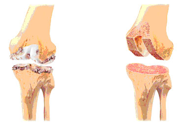 wat is artrose in de schouder