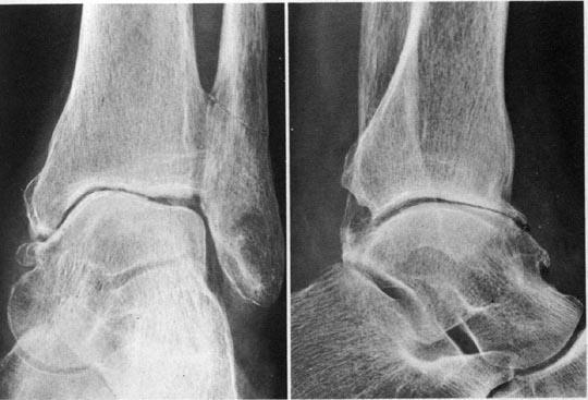 kraakbeen knie versleten
