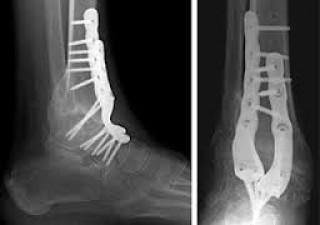 operatie voet artrose
